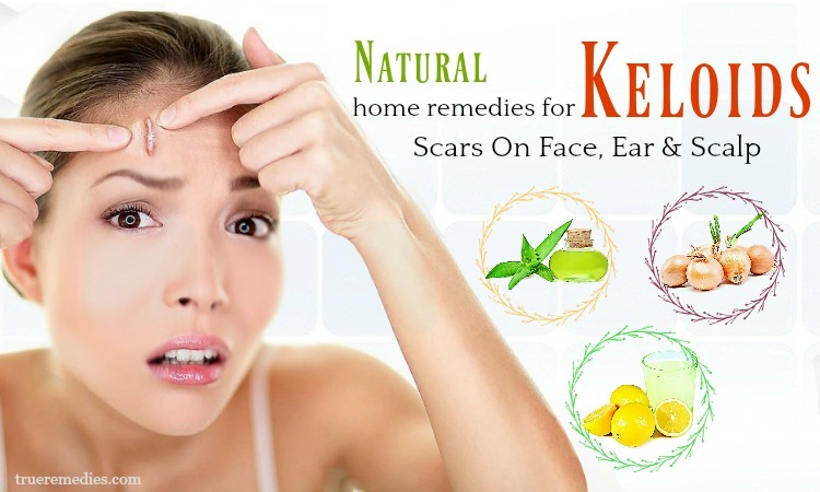 home remedies for keloids on face
