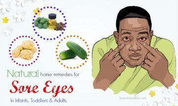 home remedies for sore eyes in adults