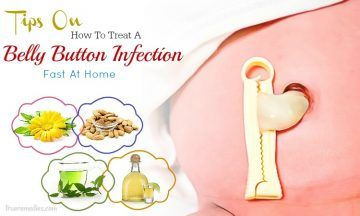 tips on how to treat a belly button infection