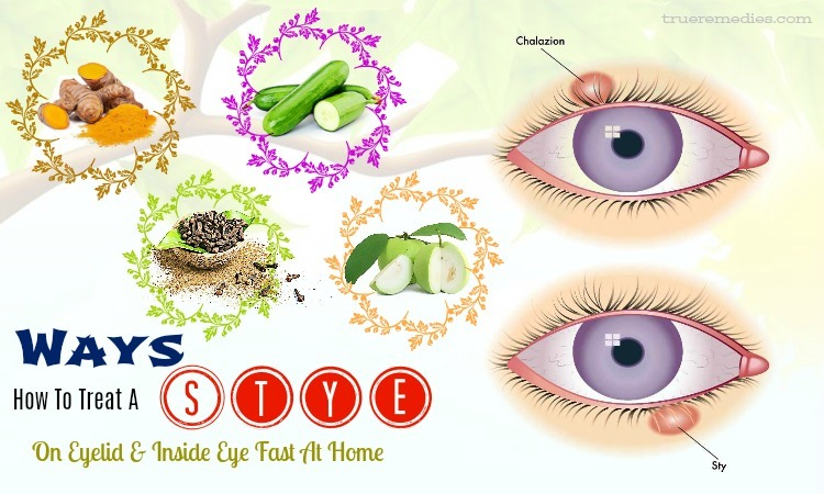 tips on how to treat a stye