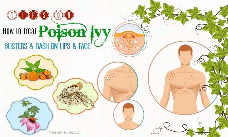 how to treat poison ivy rash