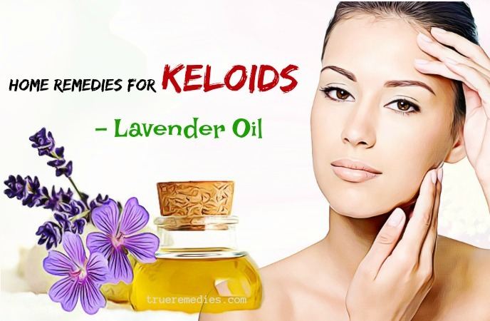 home remedies for keloids on ear - lavender oil