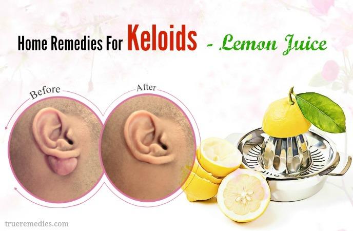 home remedies for keloids - lemon juice