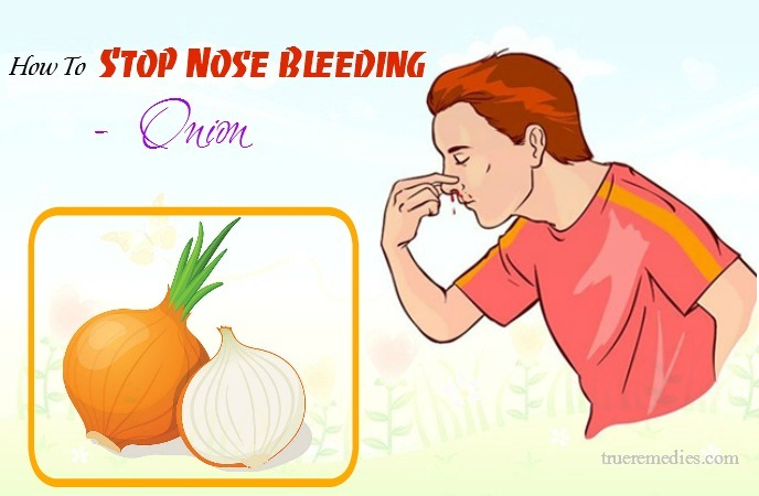 how to stop nose bleeding at home - onion