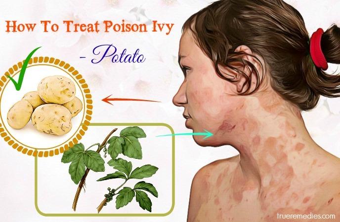 how to treat poison ivy rash - potato