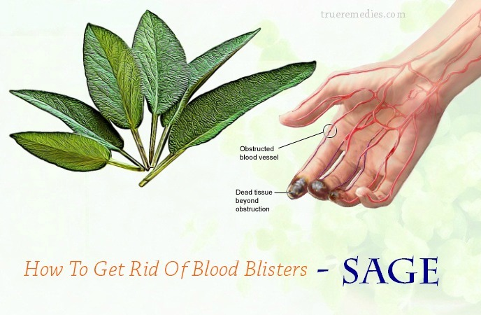 how to get rid of blood blisters on face - sage