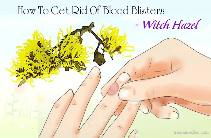how to get rid of blood blisters on face - witch hazel