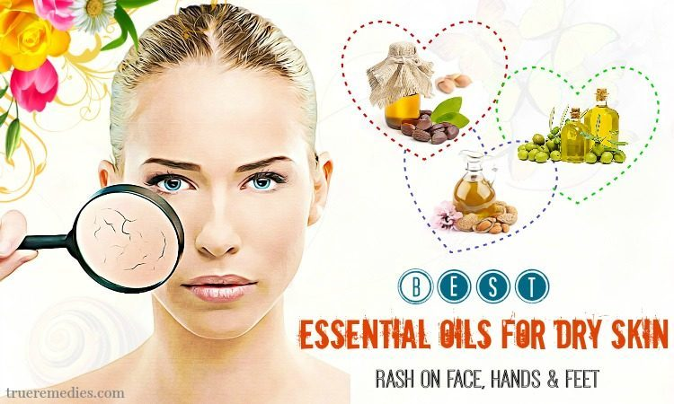 essential oils for dry skin on hands