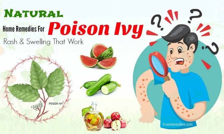 home remedies for poison ivy swelling