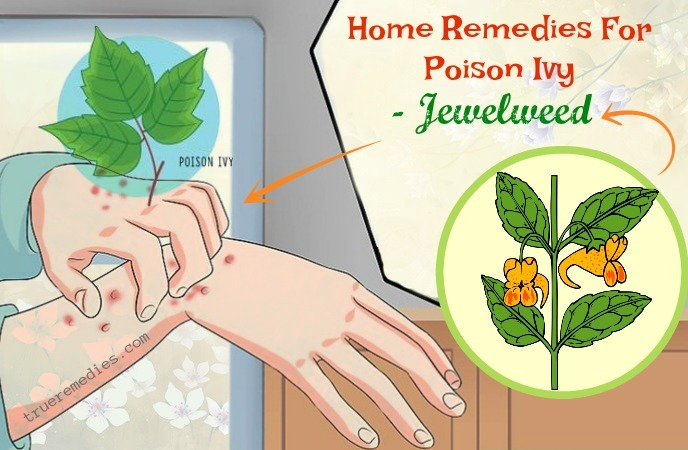 home remedies for poison ivy swelling - jewelweed