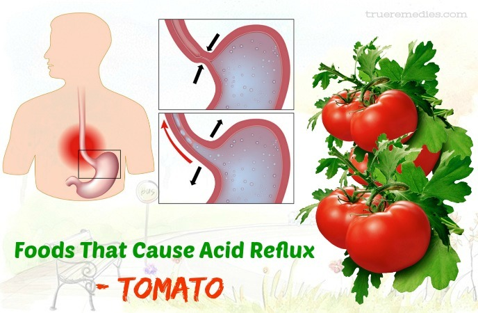 foods that cause acid reflux - tomato