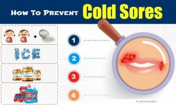 how to prevent cold sores inside mouth