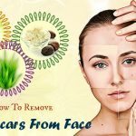 how to remove acne scars from face quickly