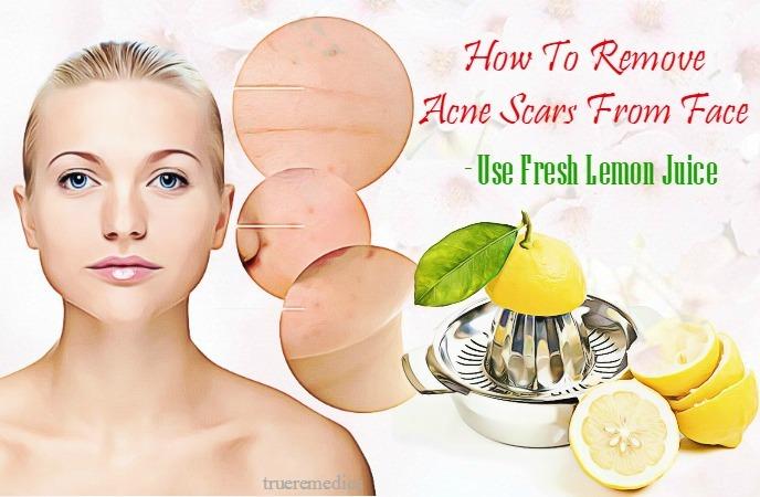 use fresh lemon juice