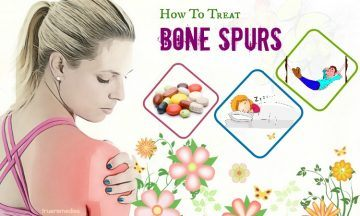 tips on how to treat bone spurs