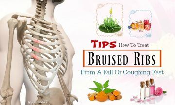 tips on how to treat bruised ribs
