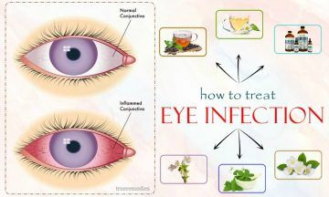 tips on how to treat eye infection