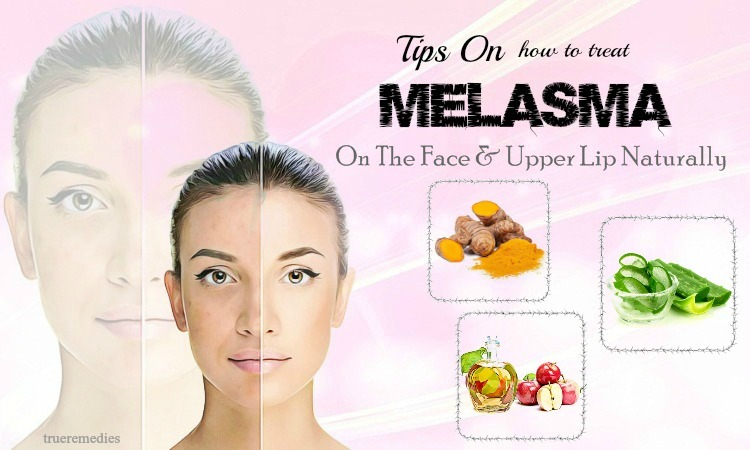 how to treat melasma on upper lip