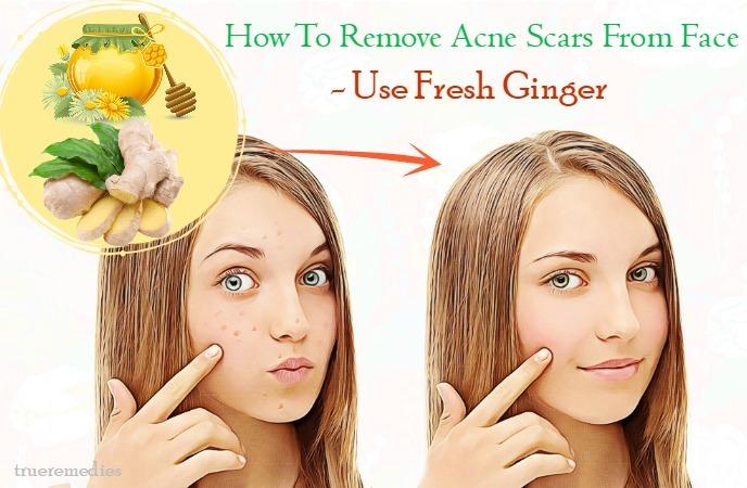 use fresh ginger