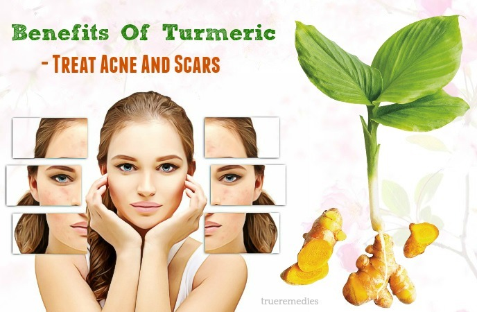 treat acne and scars
