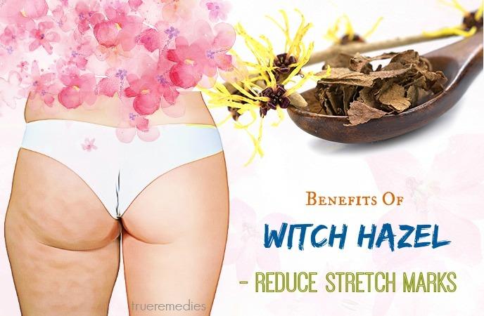 reduce stretch marks