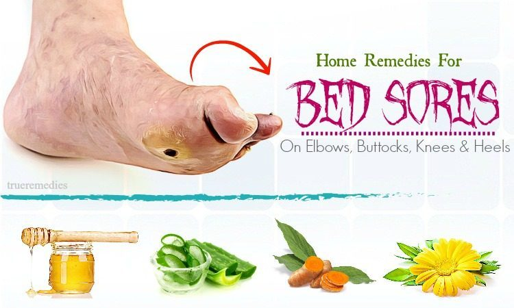 natural home remedies for bed sores