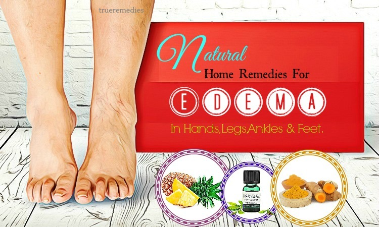 home remedies for edema in feet