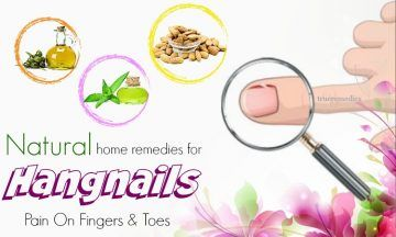 home remedies for hangnails on fingers