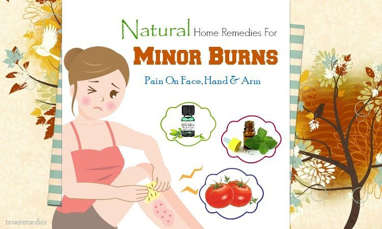 natural home remedies for minor burns