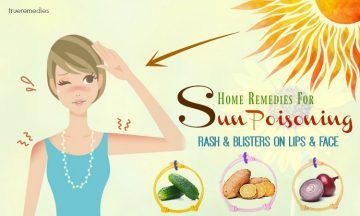 home remedies for sun poisoning blisters