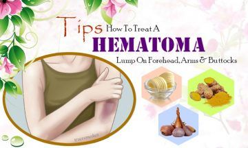 how to treat a hematoma lump