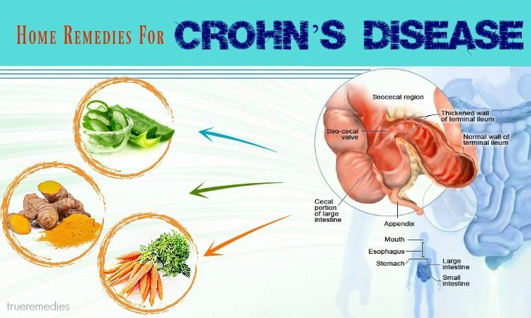home remedies for crohn's disease relief
