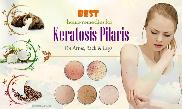 home remedies for keratosis pilaris on arms