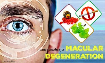 natural home remedies for macular degeneration