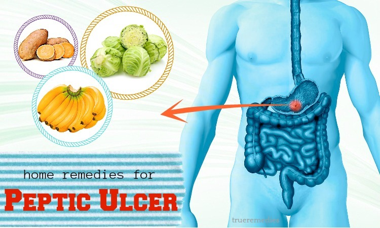 home remedies for peptic ulcer pain