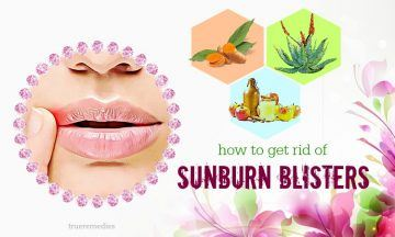 how to get rid of sunburn blisters on lips