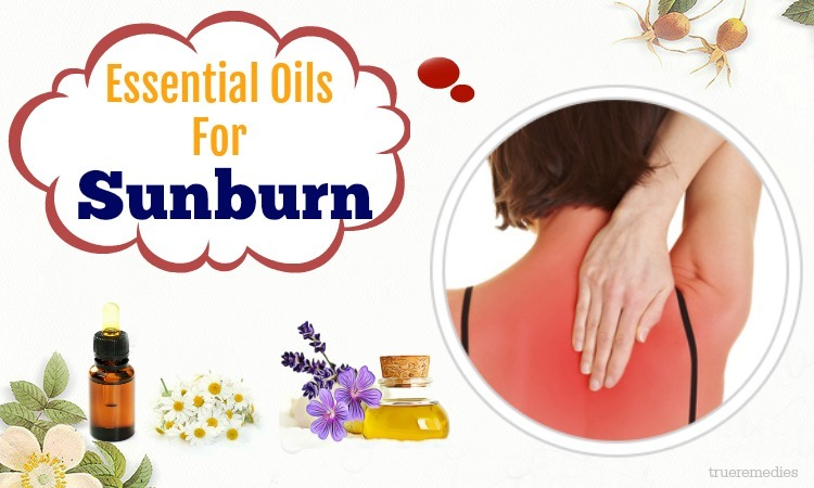 natural essential oils for sunburn