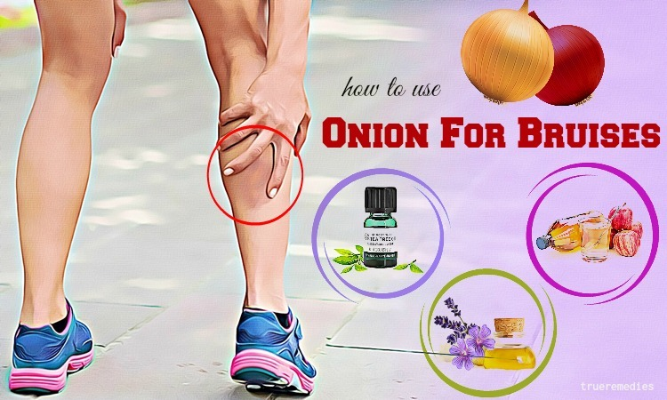 how to use onion for bruises removal