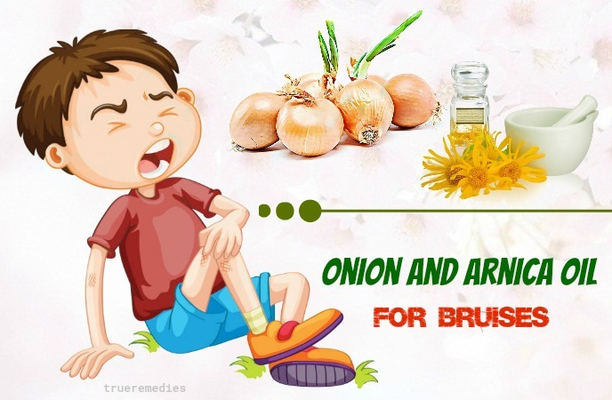tips on how to use onion for bruises - onion and arnica oil