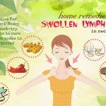 home remedies swollen lymph nodes