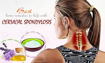 home remedies to help with cervical spondylosis