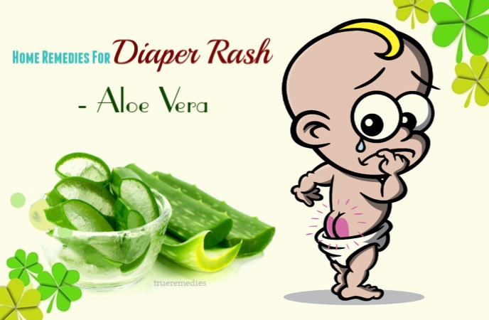 home remedies for diaper rash - aloe vera