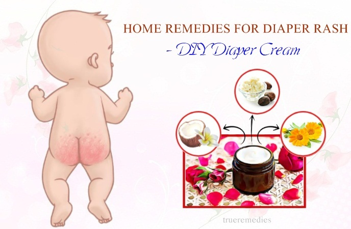 home remedies for diaper rash - diy diaper cream