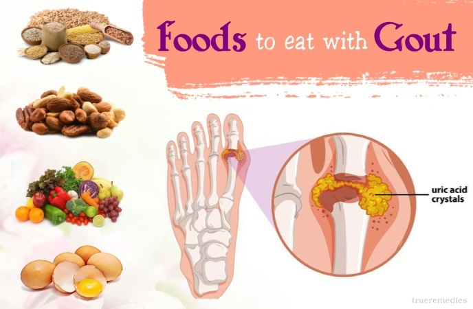 gout diet do's and don'ts - foods to eat with gout