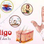 top vitiligo do's and don'ts
