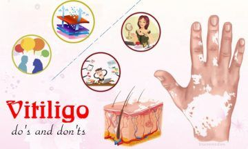 top vitiligo do's and don'ts