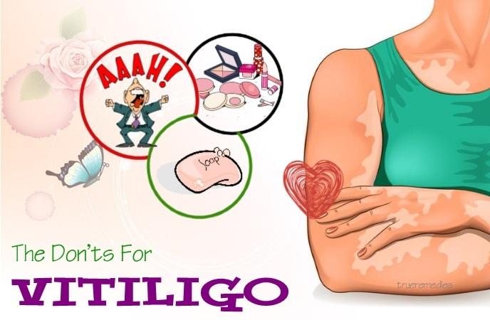 vitiligo do's and don'ts - the don'ts for vitiligo