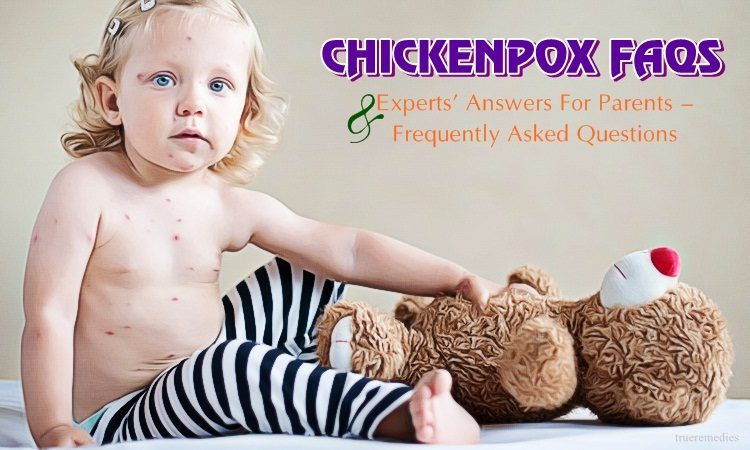 chickenpox faqs & experts' answers