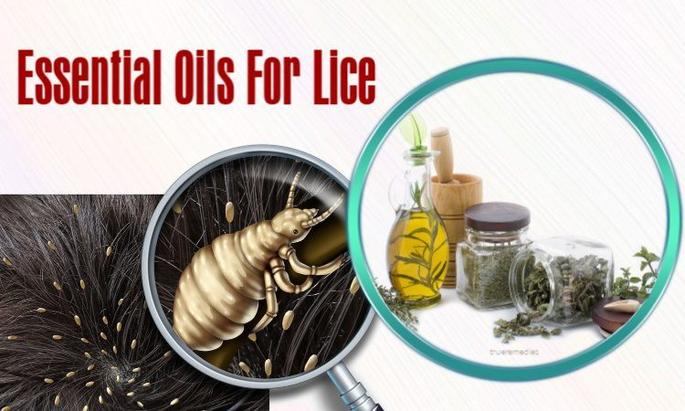 enefits of essential oils for lice