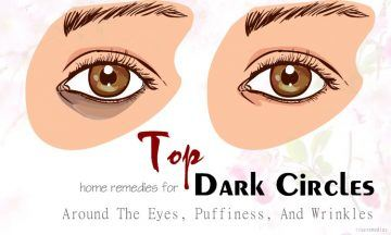 home remedies for dark circles around the eyes
